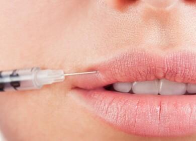 Увеличение губ гиалуроновой кислотой — всё, что вы хотели знать о процедуре