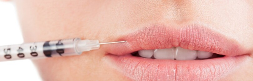 Увеличение губ гиалуроновой кислотой — эффективность и особенности проведения процедуры