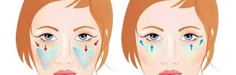 Операция подтяжки средней трети лица с фото результата