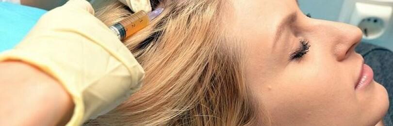 Процедура мезотерапии для волос — препараты и как проводят