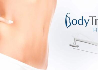 Радиочастотная липосакция — Body Tite (Боди Тайт). Фото до и после процедуры