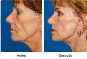 фото до и после подтяжки лица
