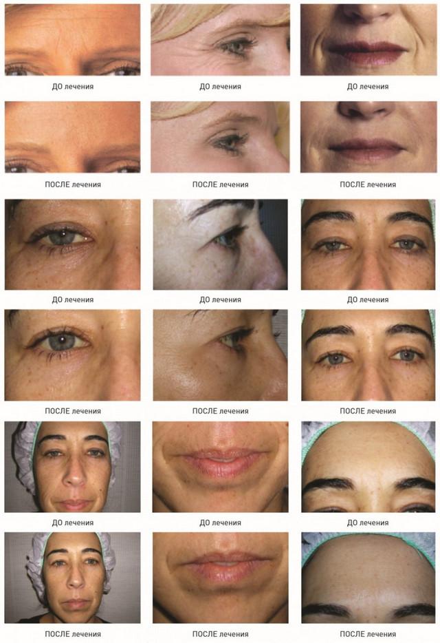 Биоревитализация глаз отзывы фото до и после