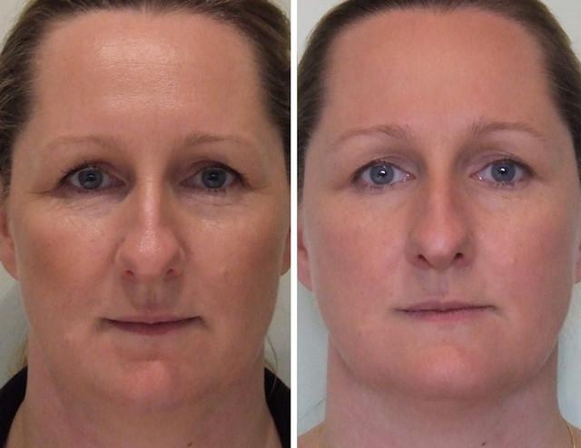 фото до и после микротоков лица