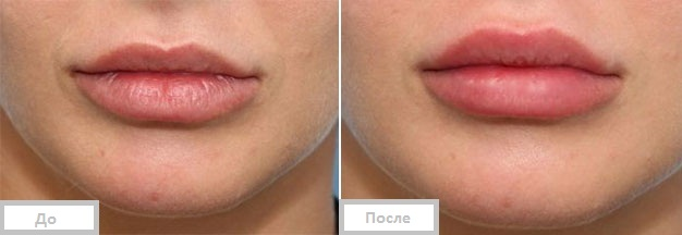 фото до и после биоревитализации губ
