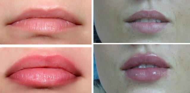 Лучшая клиника увеличение губ