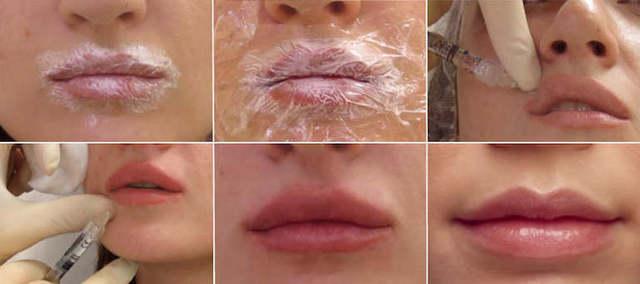 как проводят биорквитализацию губ