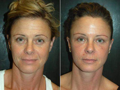 фото до и после эндоскопического лифтинга