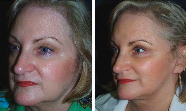 фото до и после элос омоложения