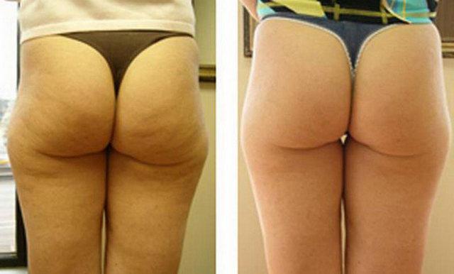 фото до и после мезотерапии от целлюлита