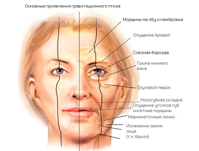 признаки птоза и старения кожи