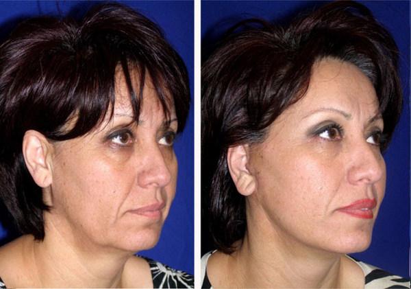 фото до и после смас лифтинга лица