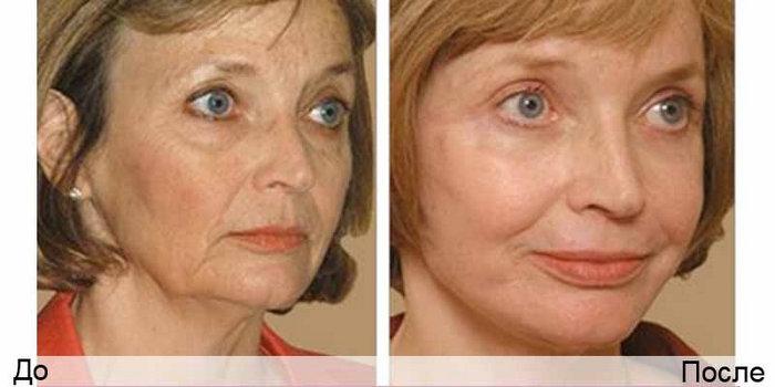 фото до и после дот-омоложения