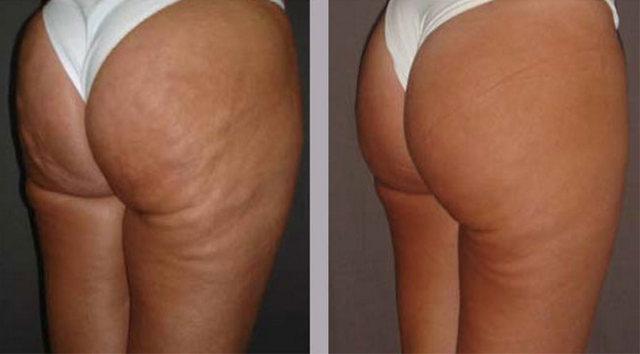 фото до и после мезотерапии бедер и ягодиц