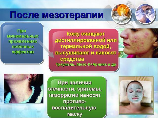 побочные эффекты мезотерапии