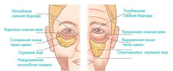 признаки старения кожи лица