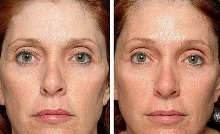 фото до и после термажа лица