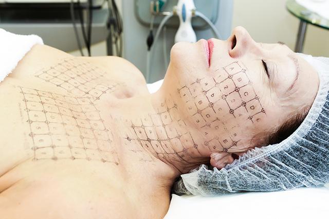 проведение процедуры термажа лица и тела