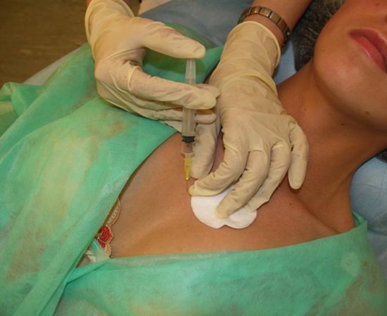 биоревитализация для подтягивания груди