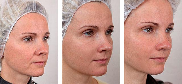 биореволюметрия с фото до и после