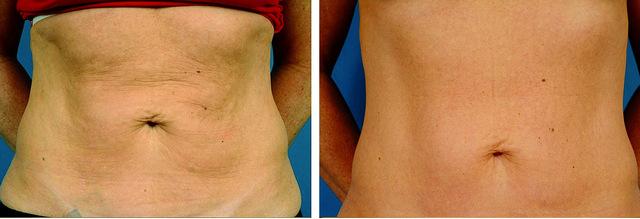 фото до и после мезотерапии живота
