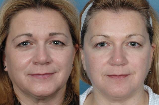 фото до и после биоревитализации пептидами