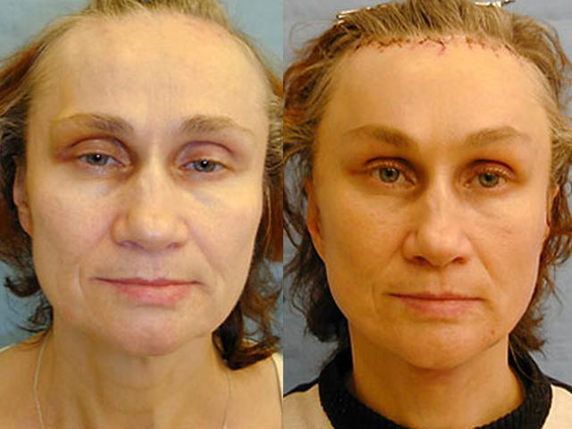 фото до и после подтяжки лба и бровей