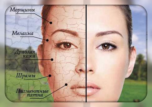 Фото косметологии процедур
