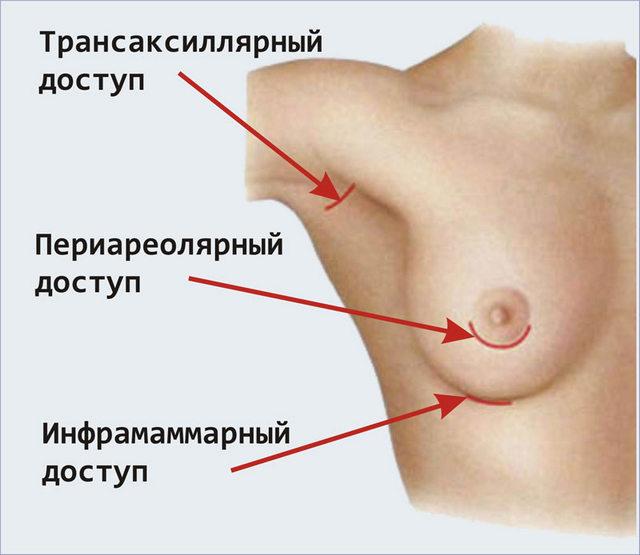 виды разрезов для подтяжки груди