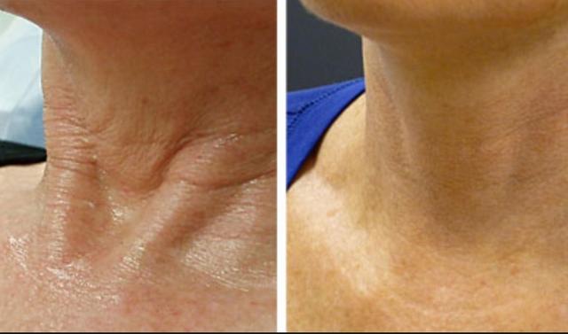 плазмолифтинг шеи до и после