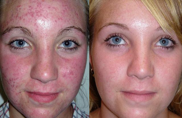 Можно ли делать плазмолифтинг при простуде — Уход за лицом