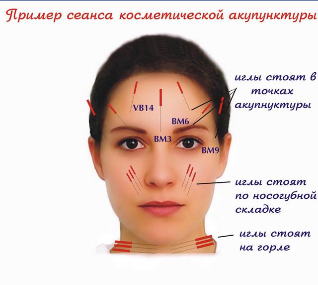 техника иглоукалывания лица