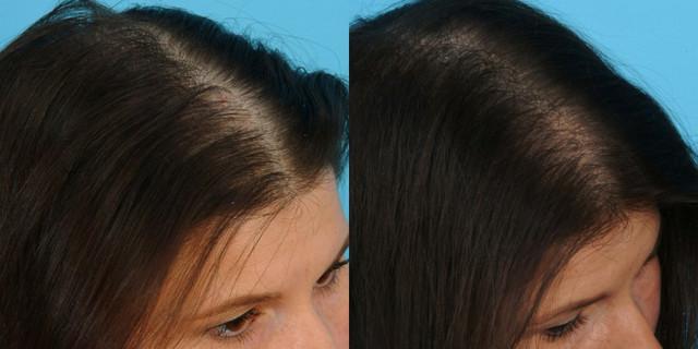 фото до и после плазмолифтинга волос