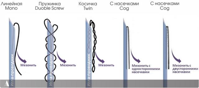 типы мезонитей для подтяжки лица