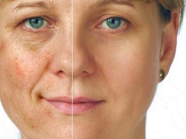 морщины и пигментация на лице