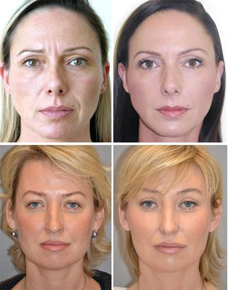 фото до и после мезонитей для лица