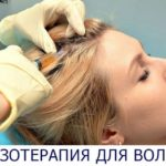 мезотерапия головы