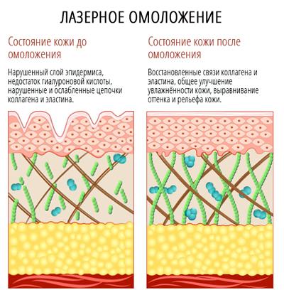 как действует омоложение лазером на кожу
