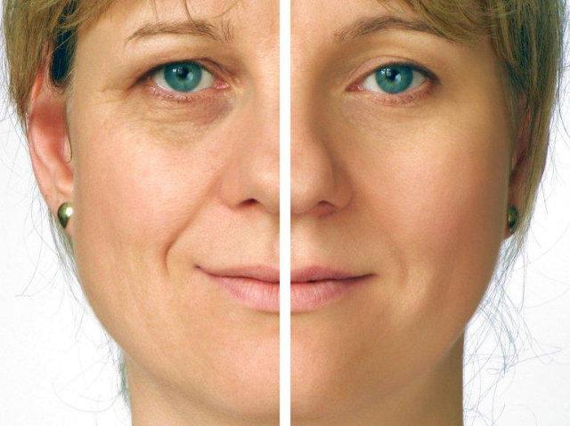 эффект от мезотерапии кожи вокруг глаз