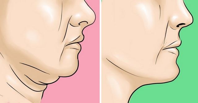 когда необходима подтяжка нижней части лица