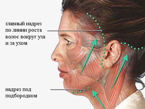 разрезы при ритидэктомии