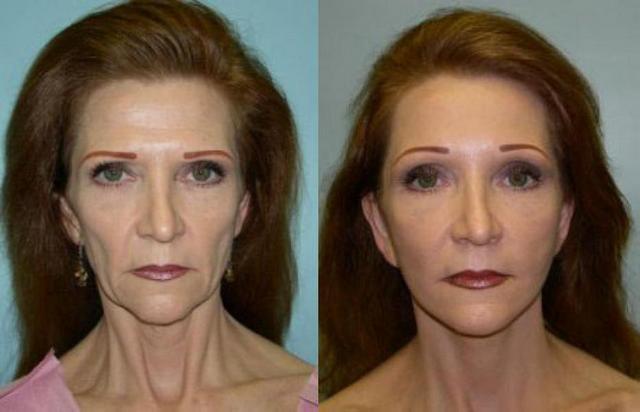 ритидэктомия фото до и после