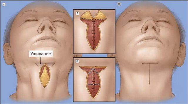 цервикопластика шеи