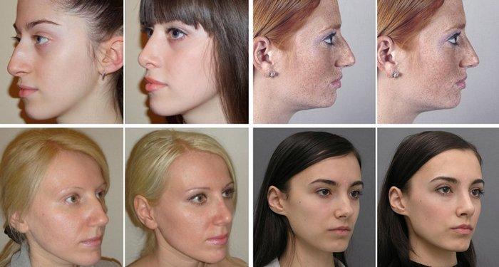 фото до и после скул гиалуроновой кислотой
