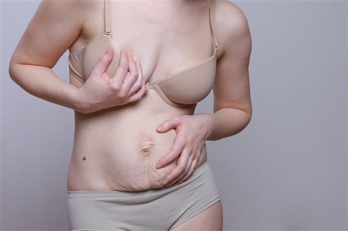 Обвисший живот после родов