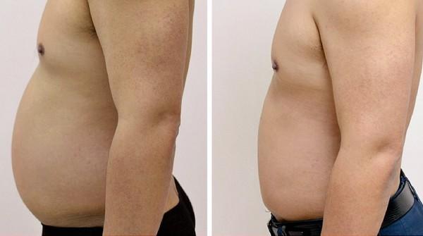 До и после проведения радиочастотной липосакции Body tite