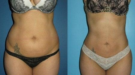 body tite - фото до и после