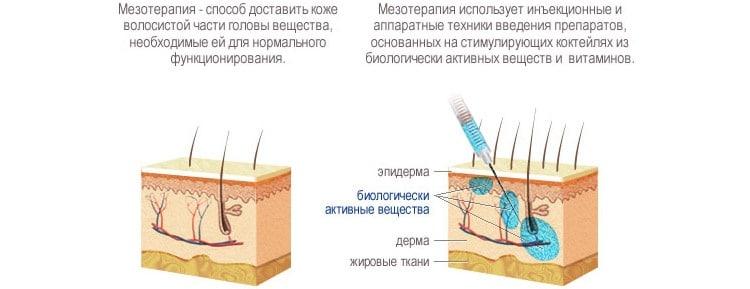 Что такое мезотерапия. Принцип действия