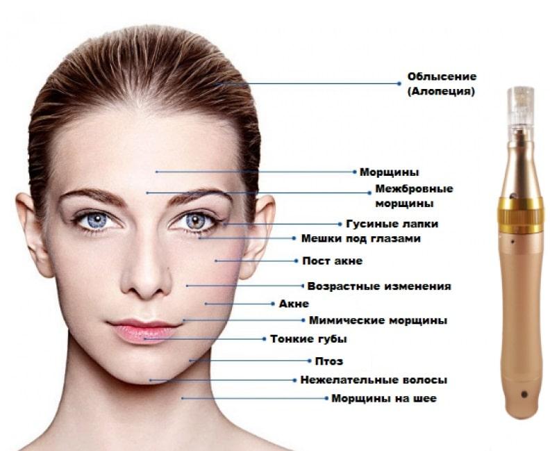Процедуры с дермапен