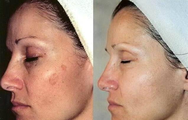 До и после карбокситерапии